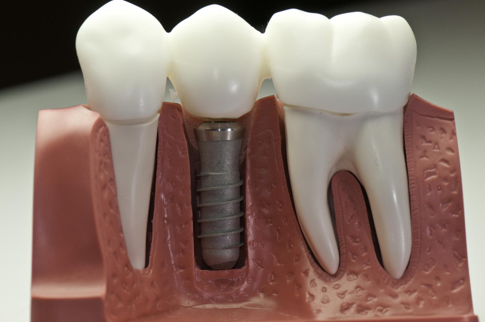 Imagens de Implantes e Próteses Dentárias