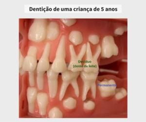 Aos 5 anos de idade a criança ainda não possui nenhum dente permanente irrompido