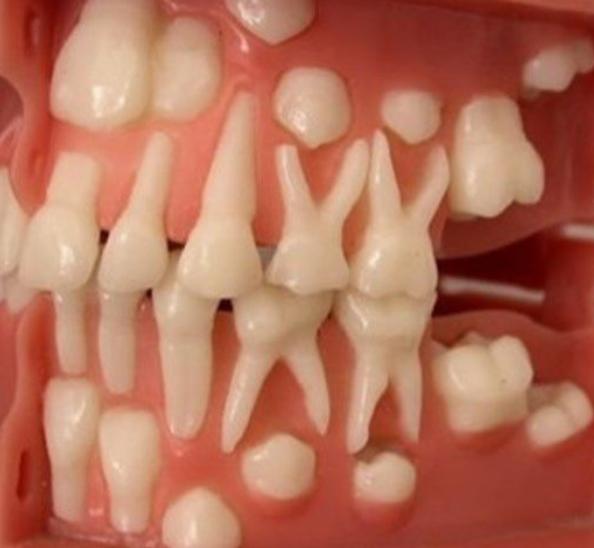 Você conhece a cronologia da dentição humana?